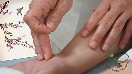 טיפולים ברפואה סינית | רפואה סינית בירושלים
